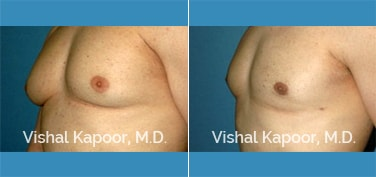 Patient 25 3/4 View Male Breast Reduction Beverly Hills Cosmetic Plastic Surgery Doc