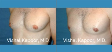 Patient 26 3/4 View Male Breast Reduction Beverly Hills Cosmetic Plastic Surgery Doc
