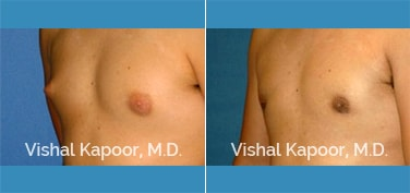 Patient 27 3/4 View Male Breast Reduction Beverly Hills Cosmetic Plastic Surgery Doc