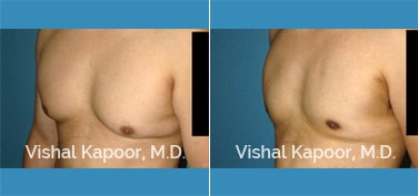 Patient 28 Left Side 3/4 View Male Breast Reduction Beverly Hills Cosmetic Plastic Surgery Doc
