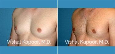Patient 29 Left Side 3/4 View Male Breast Reduction Beverly Hills Cosmetic Plastic Surgery Doc