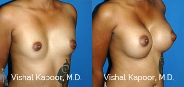 Patient 24 3/4 View Breast Augmentation Beverly Hills Cosmetic Plastic Surgery Doc
