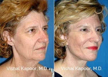 Patient 02 3/4 View Face Neck Rejuvenation Beverly Hills Cosmetic Plastic Surgery Doc