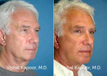 Patient 03 3/4 View Face Neck Rejuvenation Beverly Hills Cosmetic Plastic Surgery Doc