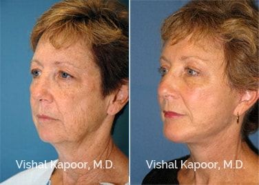 Patient 05 3/4 View Face Neck Rejuvenation Beverly Hills Cosmetic Plastic Surgery Doc