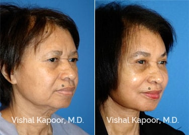 Patient 06 3/4 View Face Neck Rejuvenation Beverly Hills Cosmetic Plastic Surgery Doc