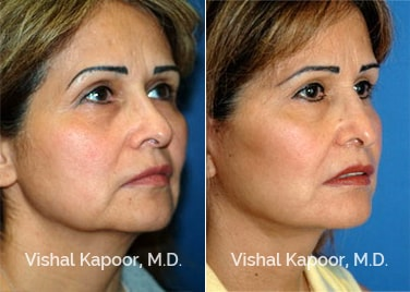 Patient 07 3/4 View Face Neck Rejuvenation Beverly Hills Cosmetic Plastic Surgery Doc
