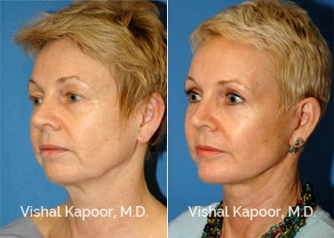 Patient 08 3/4 View Face Neck Rejuvenation Beverly Hills Cosmetic Plastic Surgery Doc
