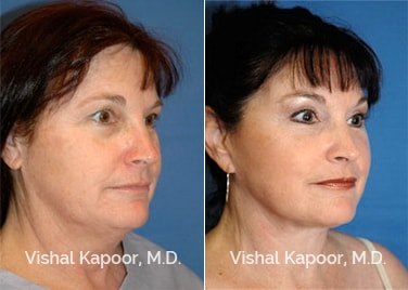 Patient 09 3/4 View Face Neck Rejuvenation Beverly Hills Cosmetic Plastic Surgery Doc