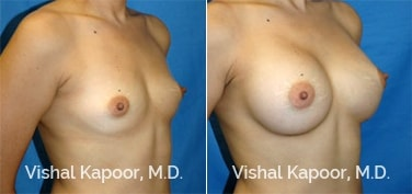 Patient 25 3/4 View Breast Augmentation Beverly Hills Cosmetic Plastic Surgery Doc