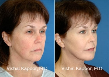 Patient 10 Front View Face Neck Rejuvenation Beverly Hills Cosmetic Plastic Surgery Doc