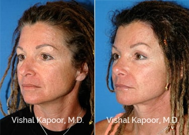 Patient 11 3/4 View Face Neck Rejuvenation Beverly Hills Cosmetic Plastic Surgery Doc