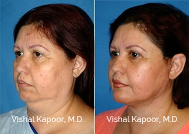 Patient 12 3/4 View Face Neck Rejuvenation Beverly Hills Cosmetic Plastic Surgery Doc