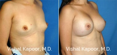 Patient 27 3/4 View Breast Augmentation Beverly Hills Cosmetic Plastic Surgery Doc