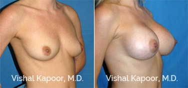 Patient 28 3/4 View Breast Augmentation Beverly Hills Cosmetic Plastic Surgery Doc
