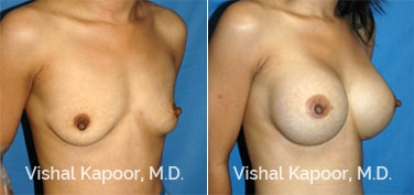 Patient 29 3/4 View Breast Augmentation Beverly Hills Cosmetic Plastic Surgery Doc