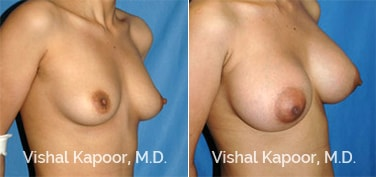 Patient 30 3/4 View Breast Augmentation Beverly Hills Cosmetic Plastic Surgery Doc