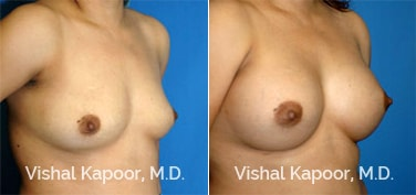 Patient 31 3/4 View Breast Augmentation Beverly Hills Cosmetic Plastic Surgery Doc