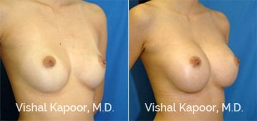 Patient 05 3/4 View Breast Augmentation Beverly Hills Cosmetic Plastic Surgery Doc