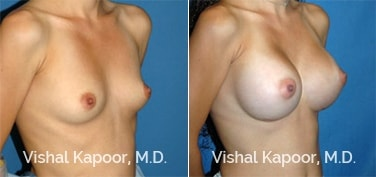 Patient 32 3/4 View Breast Augmentation Beverly Hills Cosmetic Plastic Surgery Doc
