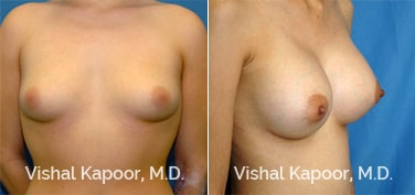 Patient 33 3/4 View Breast Augmentation Beverly Hills Cosmetic Plastic Surgery Doc