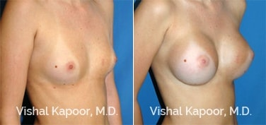 Patient 34 3/4 View Breast Augmentation Beverly Hills Cosmetic Plastic Surgery Doc
