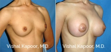 Patient 36 3/4 View Breast Augmentation Beverly Hills Cosmetic Plastic Surgery Doc