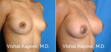 Patient 37 3/4 View Breast Augmentation Beverly Hills Cosmetic Plastic Surgery Doc