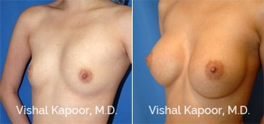 Patient 38 3/4 View Breast Augmentation Beverly Hills Cosmetic Plastic Surgery Doc