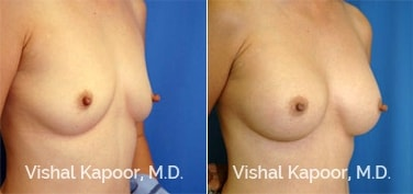 Patient 39 3/4 View Breast Augmentation Beverly Hills Cosmetic Plastic Surgery Doc