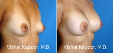 Patient 40 3/4 View Breast Augmentation Beverly Hills Cosmetic Plastic Surgery Doc