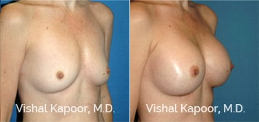 Patient 41 3/4 View Breast Augmentation Beverly Hills Cosmetic Plastic Surgery Doc