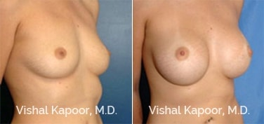 Patient 06 3/4 View Breast Augmentation Beverly Hills Cosmetic Plastic Surgery Doc