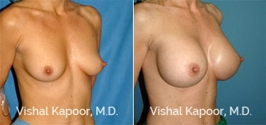 Patient 42 3/4 View Breast Augmentation Beverly Hills Cosmetic Plastic Surgery Doc