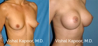 Patient 43 3/4 View Breast Augmentation Beverly Hills Cosmetic Plastic Surgery Doc
