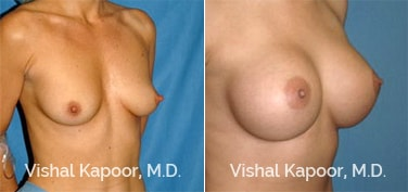 Patient 44 3/4 View Breast Augmentation Beverly Hills Cosmetic Plastic Surgery Doc