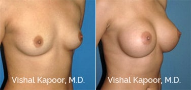 Patient 45 3/4 View Breast Augmentation Beverly Hills Cosmetic Plastic Surgery Doc