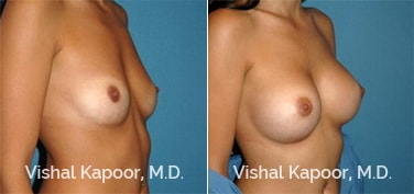 Patient 46 3/4 View Breast Augmentation Beverly Hills Cosmetic Plastic Surgery Doc