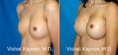 Patient 48 3/4 View Breast Augmentation Beverly Hills Cosmetic Plastic Surgery Doc