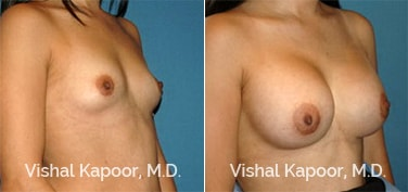 Patient 51 3/4 View Breast Augmentation Beverly Hills Cosmetic Plastic Surgery Doc
