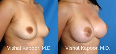 Patient 07 3/4 View Breast Augmentation Beverly Hills Cosmetic Plastic Surgery Doc