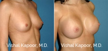 Patient 52 3/4 View Breast Augmentation Beverly Hills Cosmetic Plastic Surgery Doc