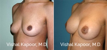 Patient 53 3/4 View Breast Augmentation Beverly Hills Cosmetic Plastic Surgery Doc