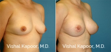 Patient 55 3/4 View Breast Augmentation Beverly Hills Cosmetic Plastic Surgery Doc