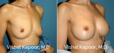 Patient 56 3/4 View Breast Augmentation Beverly Hills Cosmetic Plastic Surgery Doc