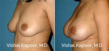 Patient 57 3/4 View Breast Augmentation Beverly Hills Cosmetic Plastic Surgery Doc