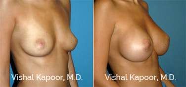 Patient 59 3/4 View Breast Augmentation Beverly Hills Cosmetic Plastic Surgery Doc