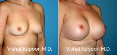 Patient 60 3/4 View Breast Augmentation Beverly Hills Cosmetic Plastic Surgery Doc
