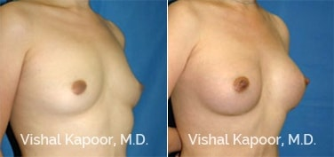 Patient 08 3/4 View Breast Augmentation Beverly Hills Cosmetic Plastic Surgery Doc