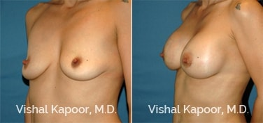 Patient 62 3/4 View Breast Augmentation Beverly Hills Cosmetic Plastic Surgery Doc